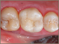 CEREC Tooth Restorations After