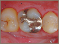 CEREC Tooth Restorations Before
