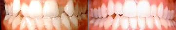 Overly Crowded Teeth Before & After