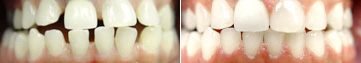 Gapped Teeth Before & After